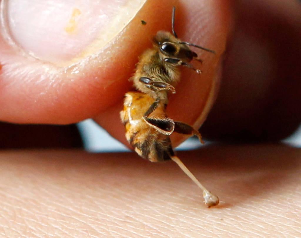 Veninul de albina in hernii
